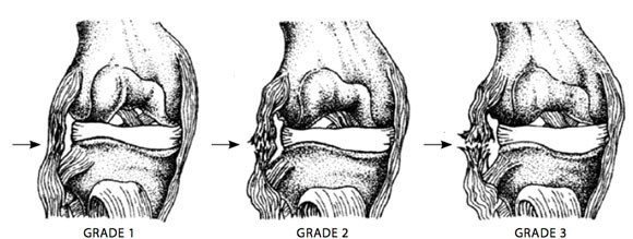 Ligament injury grades