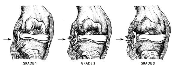 Ligament injury grades