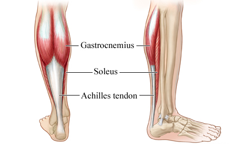 Achilles Tendonosis and Physio