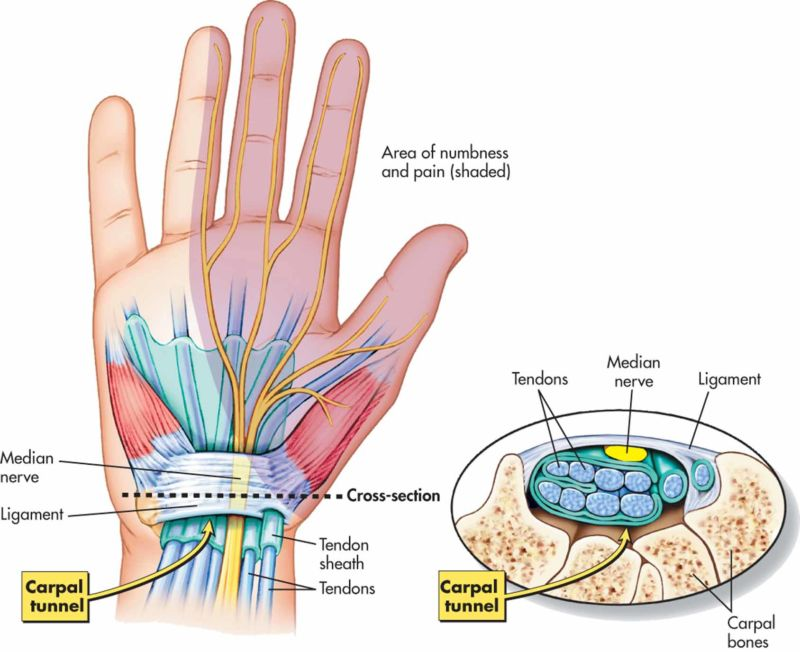 carpal tunnel syndrome anatomy