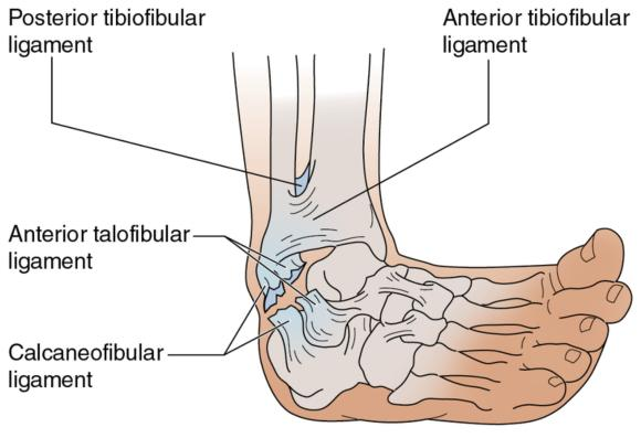 Ankle sprains, can physio help?