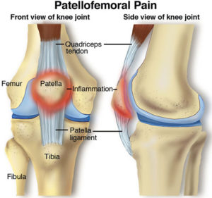 knee pain manchester