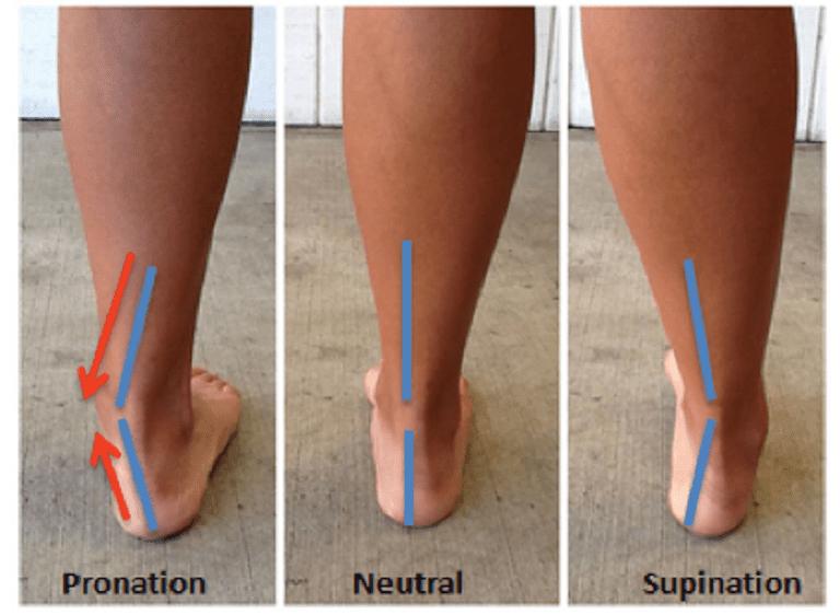 foot pain risk factors