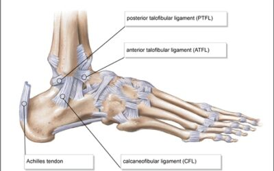 Top Tips on How to Manage an Ankle Sprain