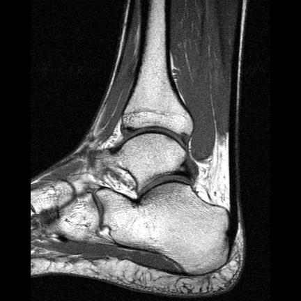 ankle MRI