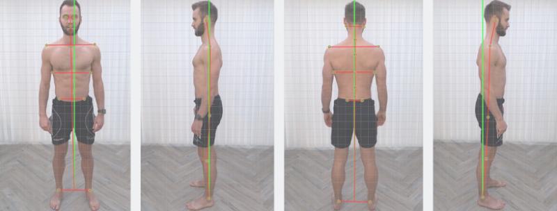 Posture Screen